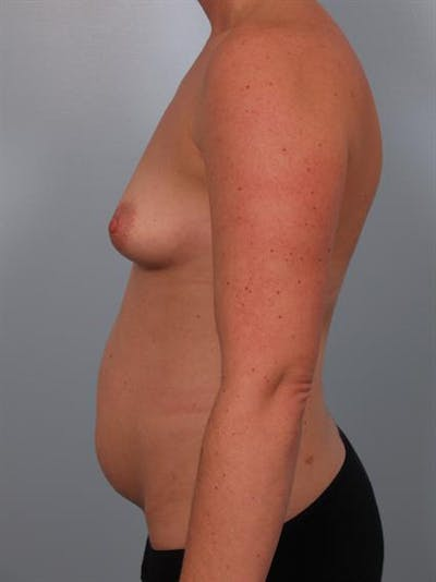 Breast Augmentation Gallery - Patient 1310804 - Image 1