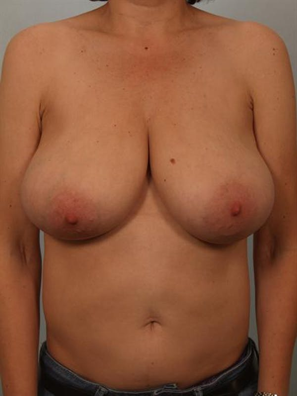 Breast Reduction Gallery - Patient 1310802 - Image 1
