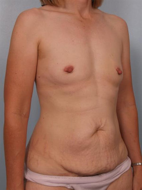 Mommy Makeover Gallery - Patient 1310800 - Image 3