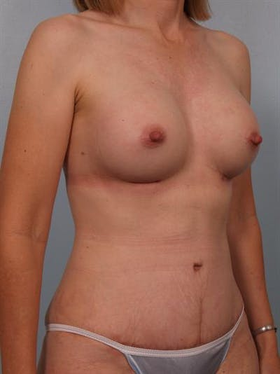 Mommy Makeover Gallery - Patient 1310800 - Image 4