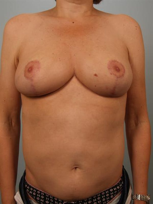 Breast Reduction Gallery - Patient 1310802 - Image 2
