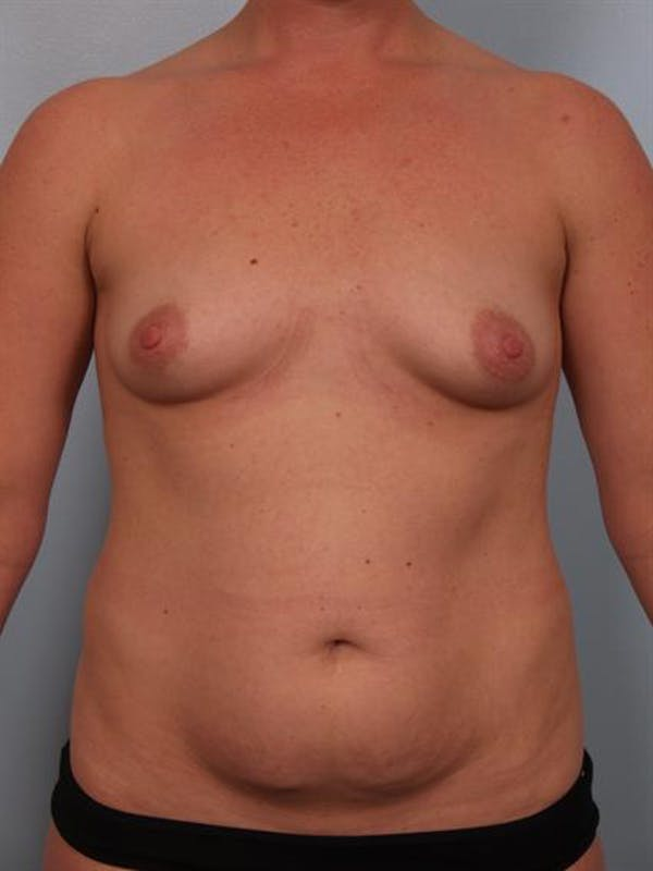 Breast Augmentation Gallery - Patient 1310804 - Image 3