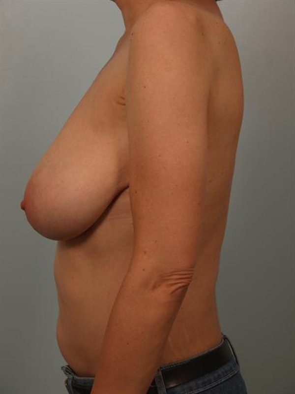 Breast Reduction Gallery - Patient 1310802 - Image 5
