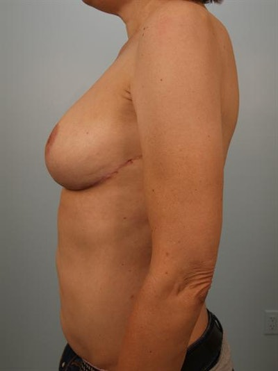 Breast Reduction Gallery - Patient 1310802 - Image 6