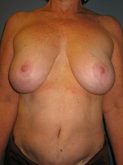 Breast Reduction Gallery - Patient 1310810 - Image 1