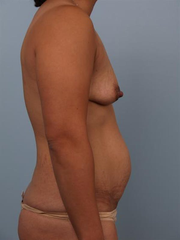 Mommy Makeover Gallery - Patient 1310808 - Image 3