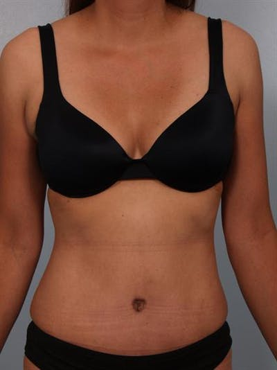 Tummy Tuck Gallery - Patient 1310809 - Image 2