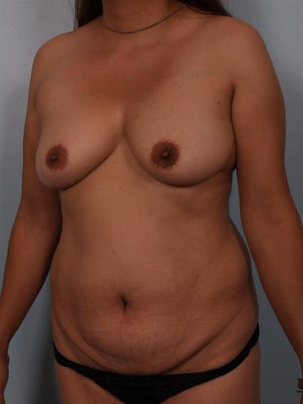 Tummy Tuck Gallery - Patient 1310809 - Image 3