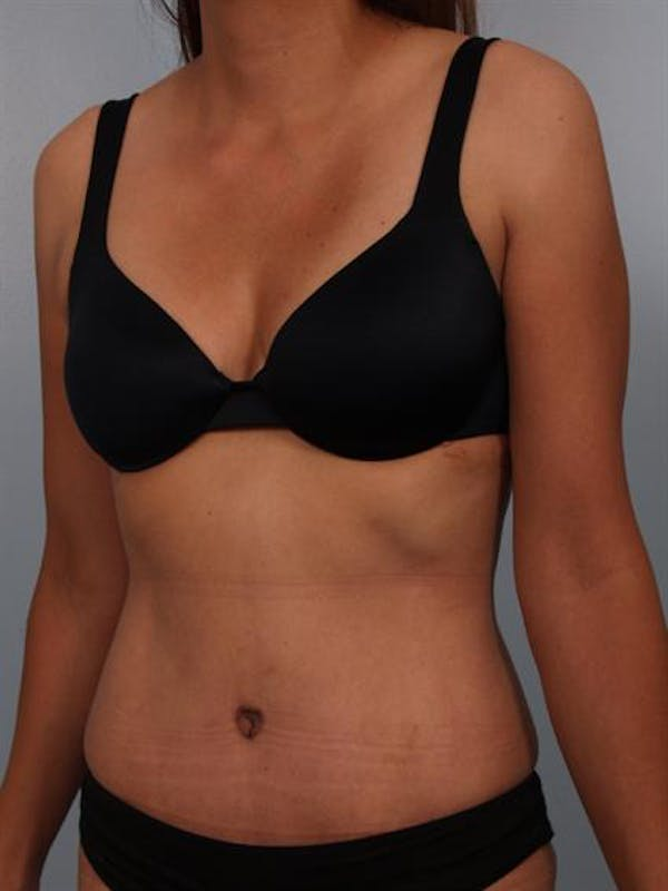 Tummy Tuck Gallery - Patient 1310809 - Image 4
