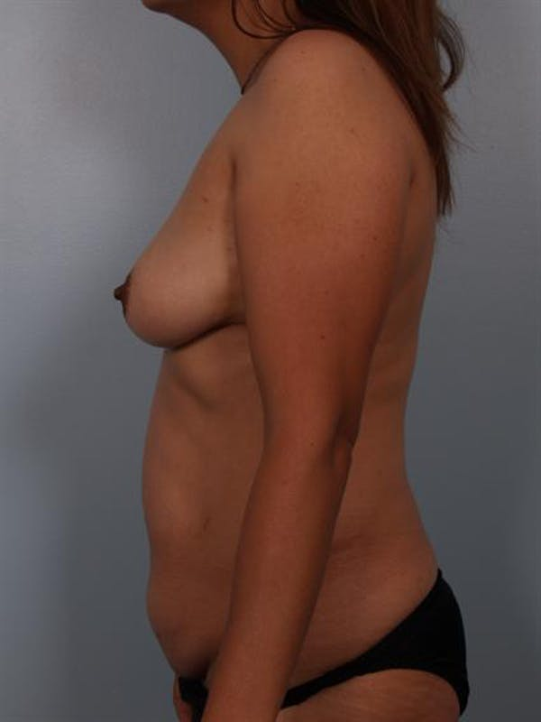 Tummy Tuck Gallery - Patient 1310809 - Image 5
