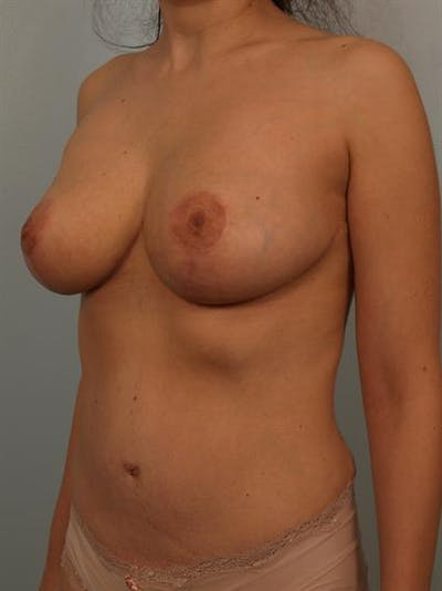 Power Assisted Liposuction Gallery - Patient 1310807 - Image 4
