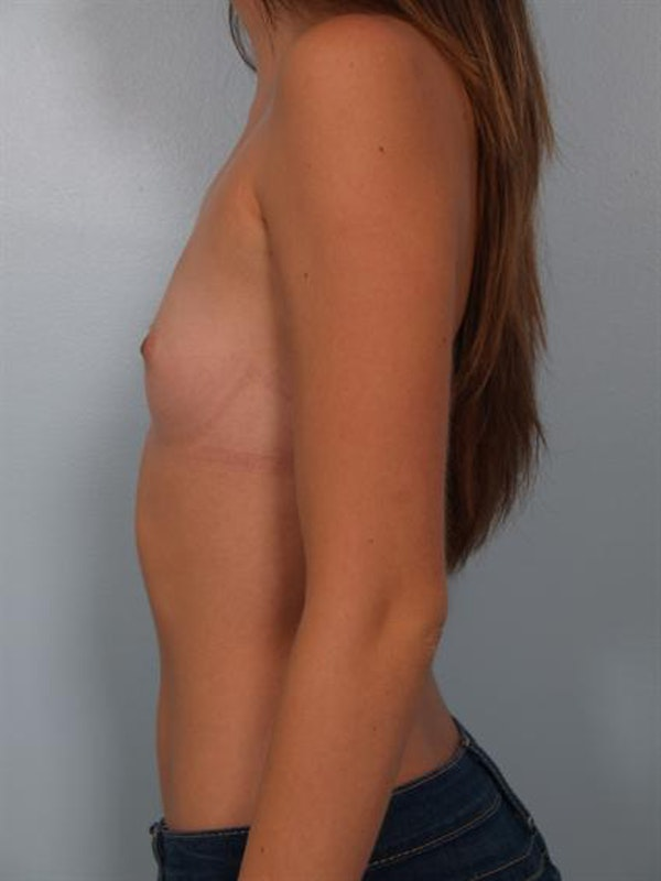 Breast Augmentation Gallery - Patient 1310814 - Image 1