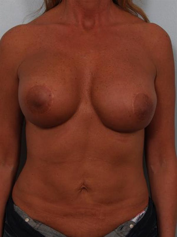 Complex Breast Revision Gallery - Patient 1310811 - Image 1