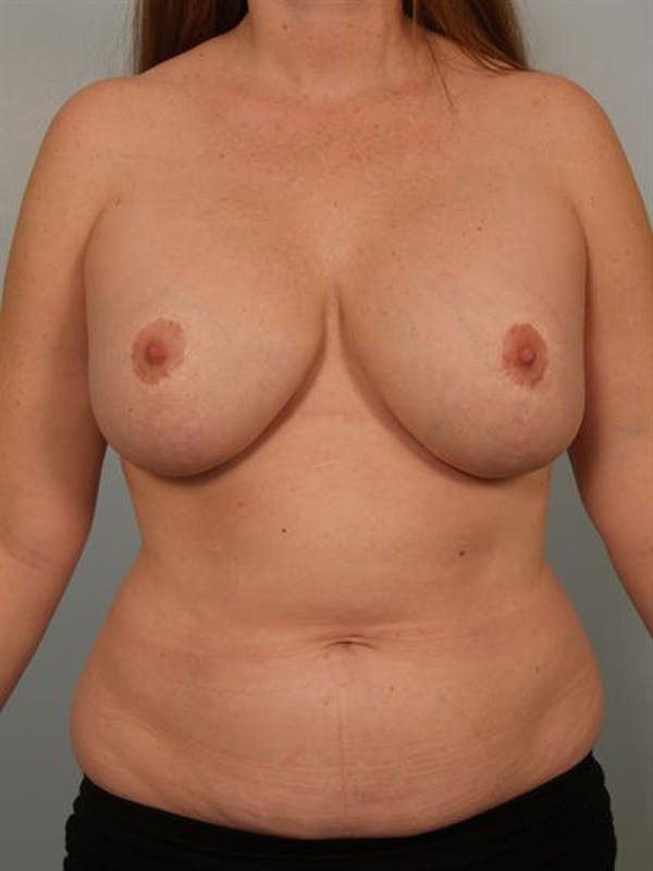 Breast Lift Gallery - Patient 1310812 - Image 1
