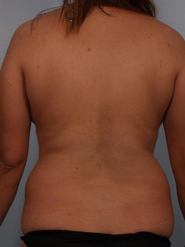 Tummy Tuck Gallery - Patient 1310809 - Image 7