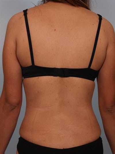 Tummy Tuck Gallery - Patient 1310809 - Image 8