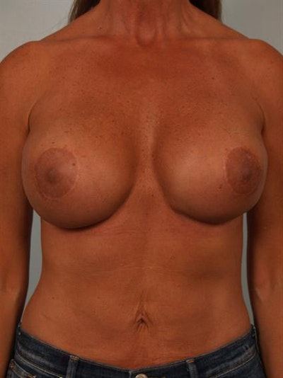 Complex Breast Revision Gallery - Patient 1310811 - Image 2