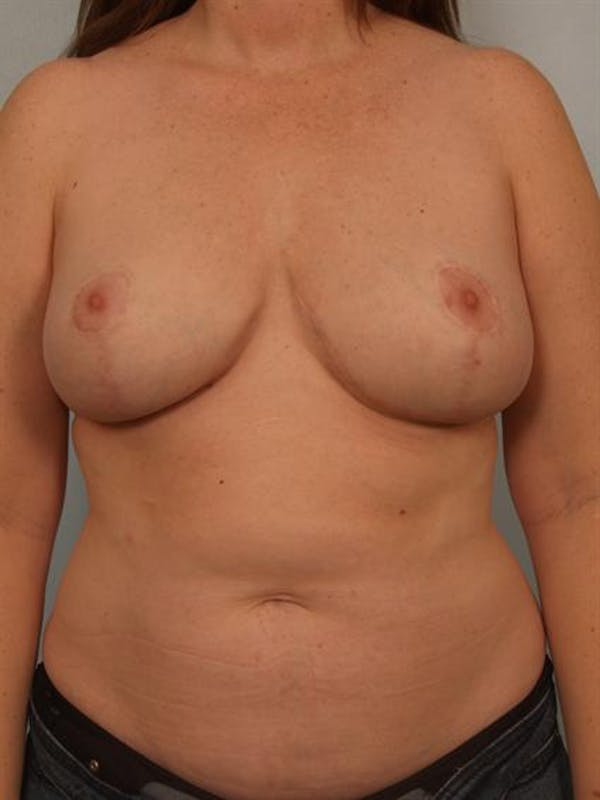 Breast Lift Gallery - Patient 1310812 - Image 2