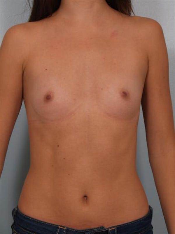 Breast Augmentation Gallery - Patient 1310814 - Image 3