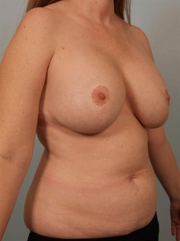 Breast Lift Gallery - Patient 1310812 - Image 3