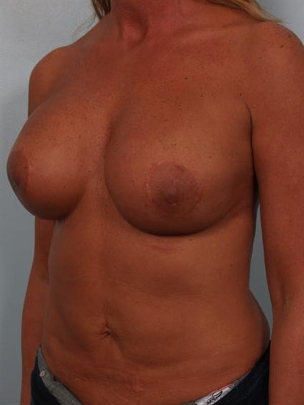 Complex Breast Revision Gallery - Patient 1310811 - Image 3