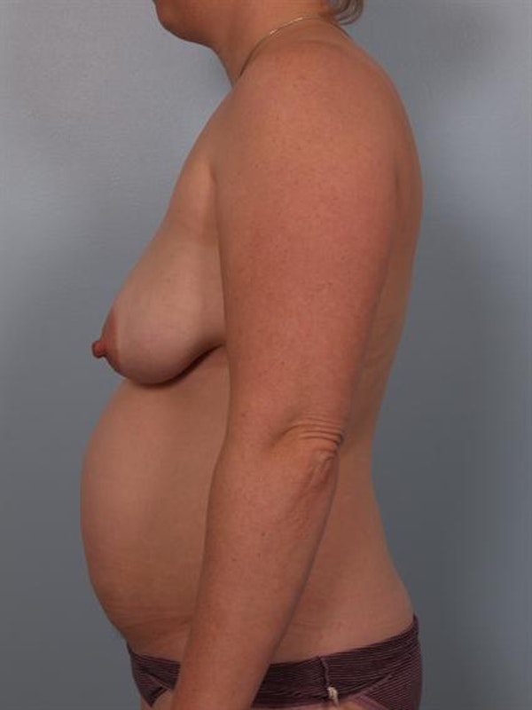 Mommy Makeover Gallery - Patient 1310816 - Image 3