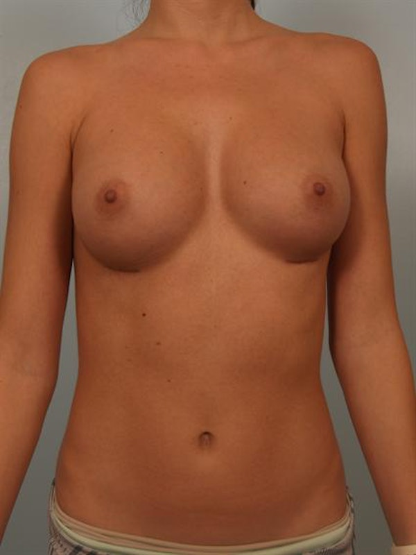 Breast Augmentation Gallery - Patient 1310814 - Image 4