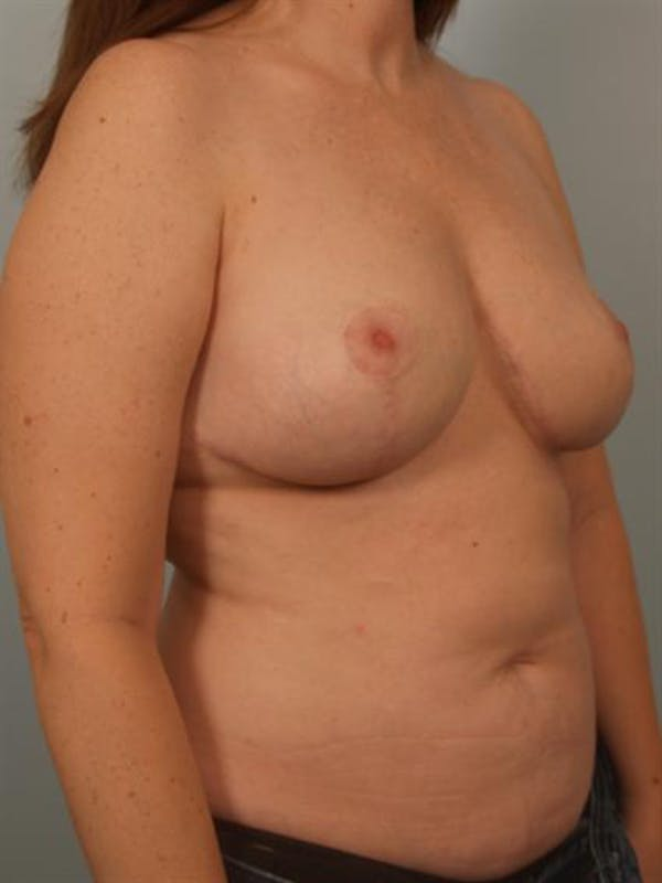 Breast Lift Gallery - Patient 1310812 - Image 4