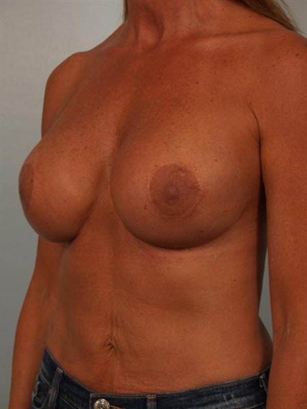 Complex Breast Revision Gallery - Patient 1310811 - Image 4