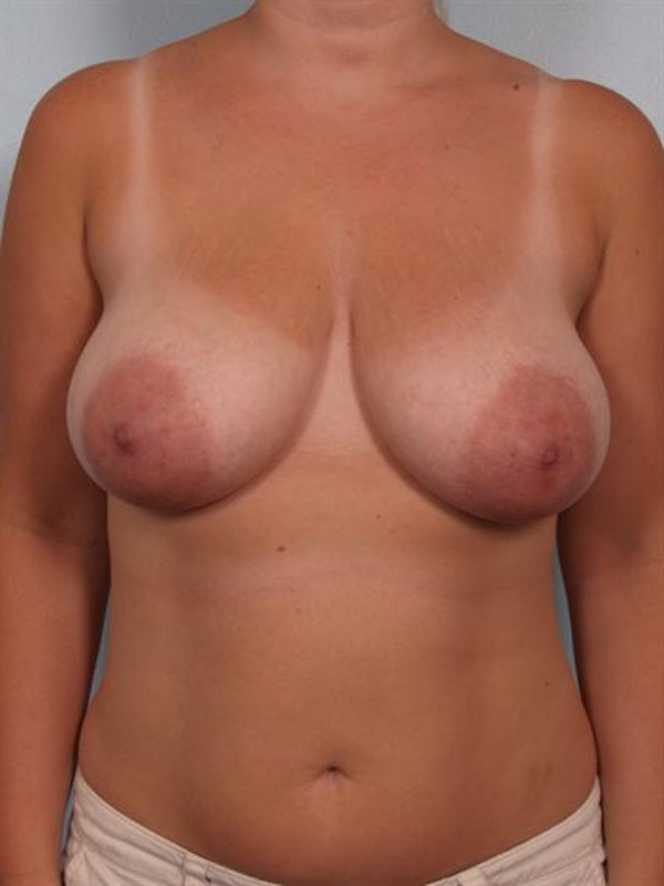 Breast Reduction Gallery - Patient 1310817 - Image 1