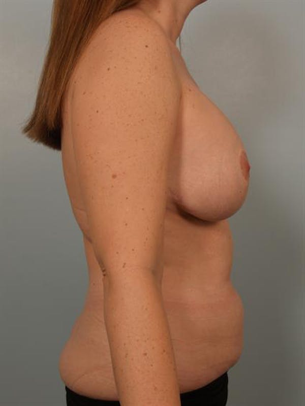 Breast Lift Gallery - Patient 1310812 - Image 5