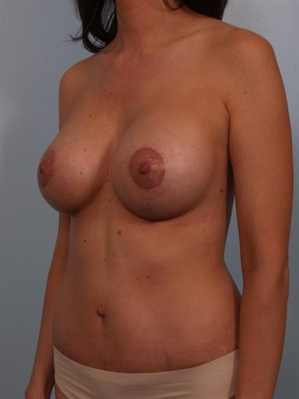 Power Assisted Liposuction Gallery - Patient 1310813 - Image 4