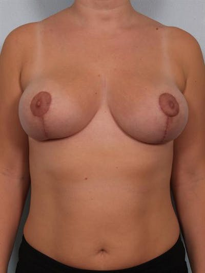 Breast Reduction Gallery - Patient 1310817 - Image 2