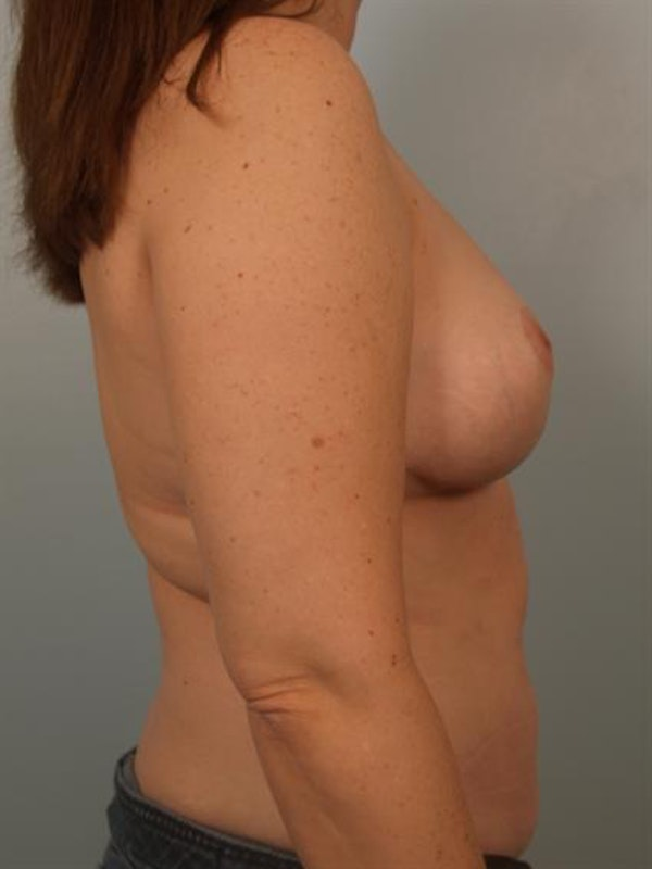Breast Lift Gallery - Patient 1310812 - Image 6