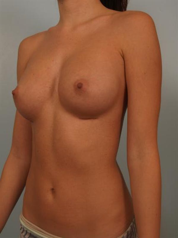 Breast Augmentation Gallery - Patient 1310814 - Image 6