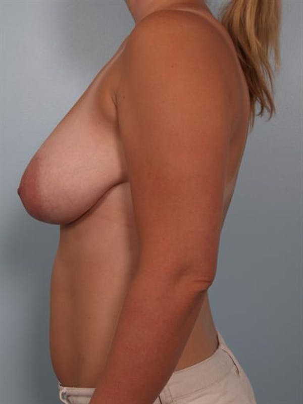 Breast Reduction Gallery - Patient 1310817 - Image 3