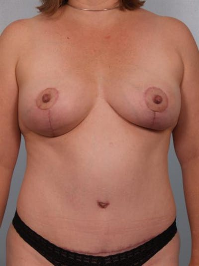 Mommy Makeover Gallery - Patient 1310816 - Image 2