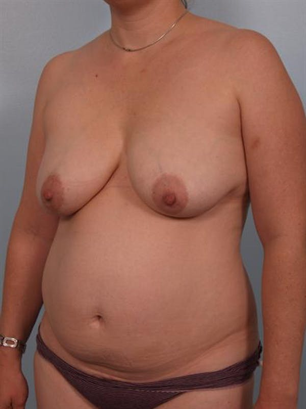 Mommy Makeover Gallery - Patient 1310816 - Image 5