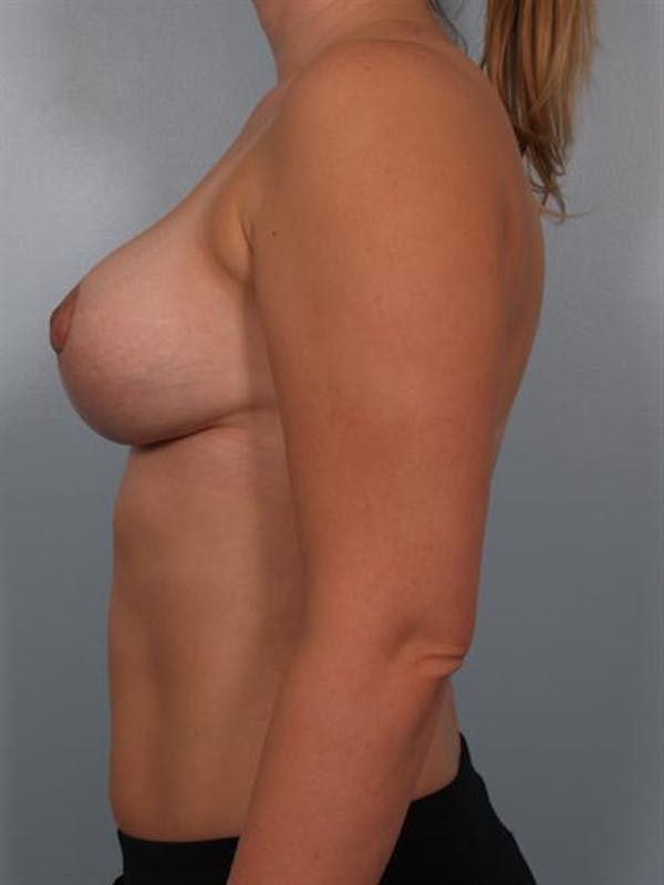 Breast Reduction Gallery - Patient 1310817 - Image 4