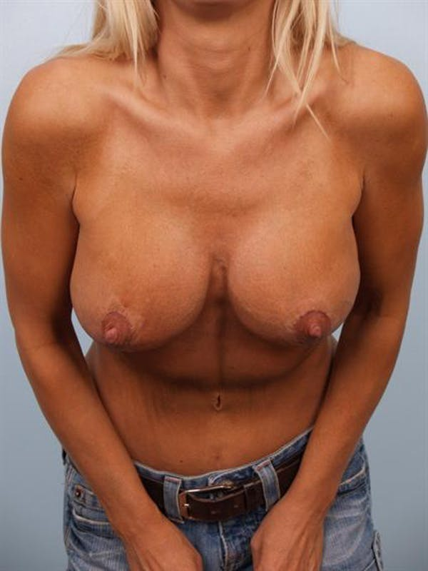 Complex Breast Revision Gallery - Patient 1310819 - Image 2