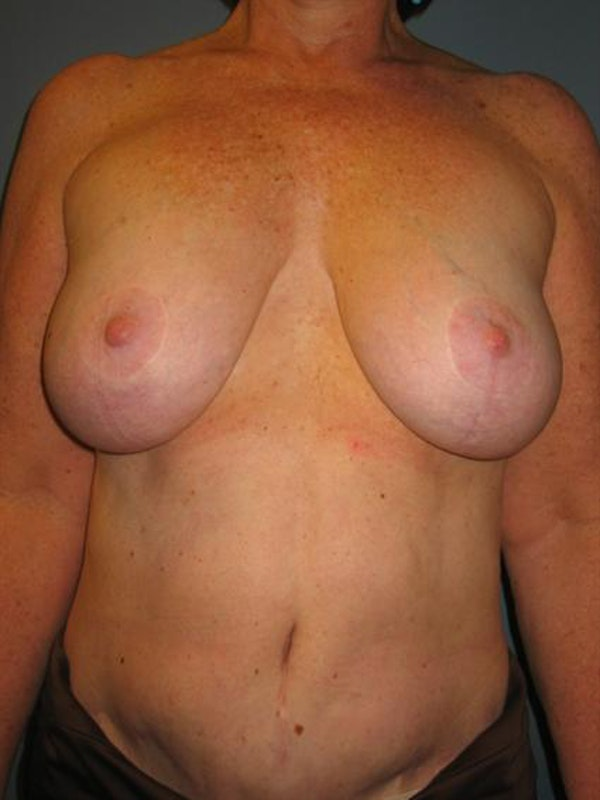 Breast Lift Gallery - Patient 1310820 - Image 1
