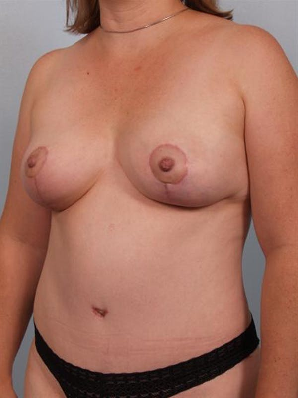 Mommy Makeover Gallery - Patient 1310816 - Image 6