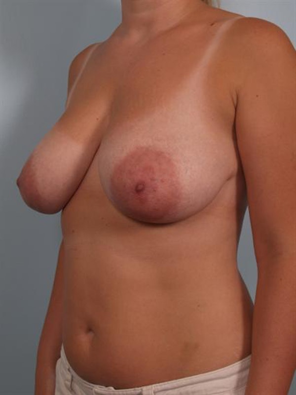 Breast Reduction Gallery - Patient 1310817 - Image 5