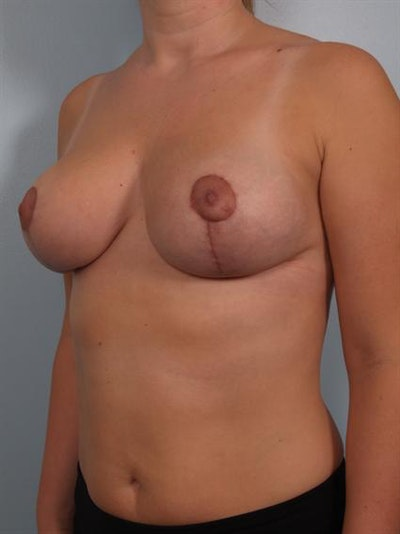 Breast Reduction Gallery - Patient 1310817 - Image 6