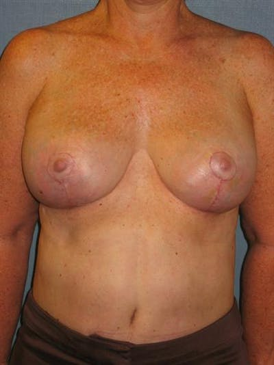 Breast Lift Gallery - Patient 1310820 - Image 2