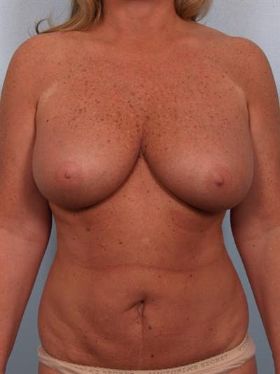 Tummy Tuck Gallery - Patient 1310824 - Image 1