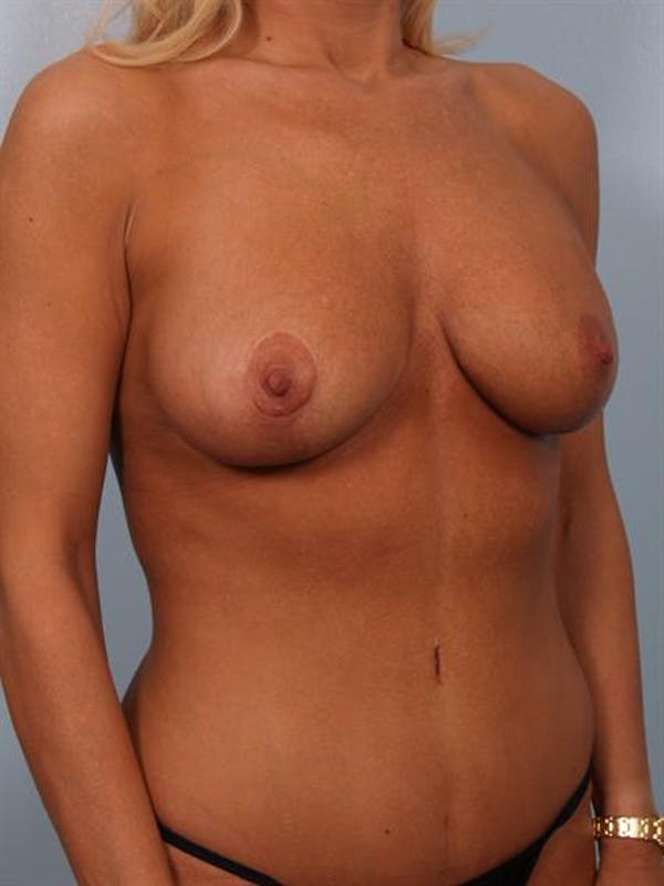 Complex Breast Revision Gallery - Patient 1310819 - Image 4