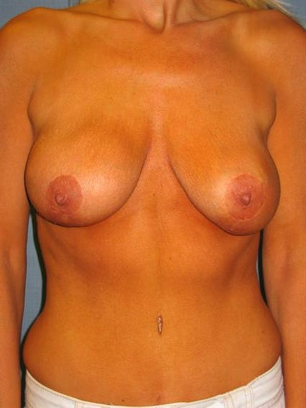 Complex Breast Revision Gallery - Patient 1310819 - Image 5