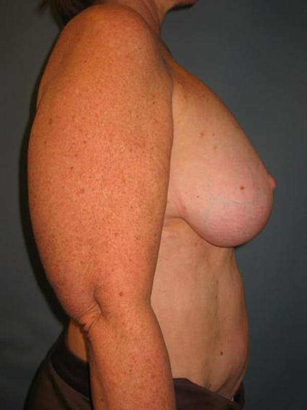 Breast Lift Gallery - Patient 1310820 - Image 3