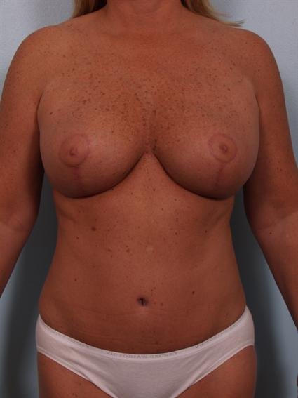 Image2 - Before and after image of Tummy Tuck by Dr. Cohen.
